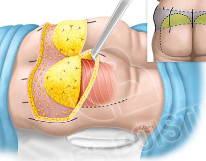 Surgery : beld lipectomy