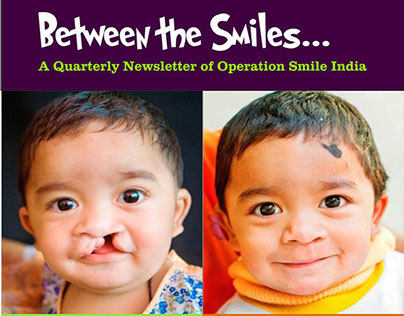 Operation Smile India Donor Newsletter