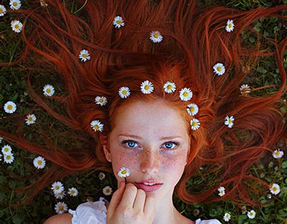 Freckles: Spring