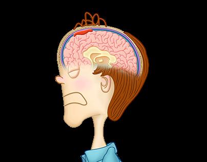 Subdural Hematoma Animation