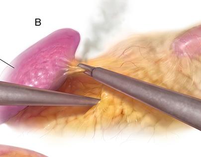 Laparoscopic Nephrectomy (left)