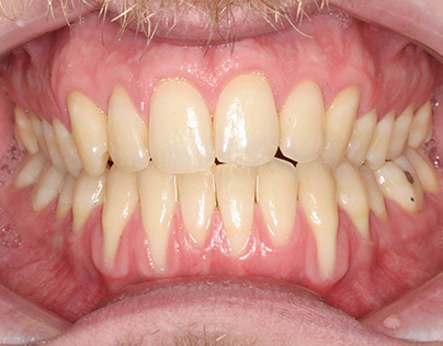 Advanced gum recession on a 38 year old male.