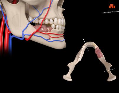 Partial Mandibulectomy due to carcinoma (3D)