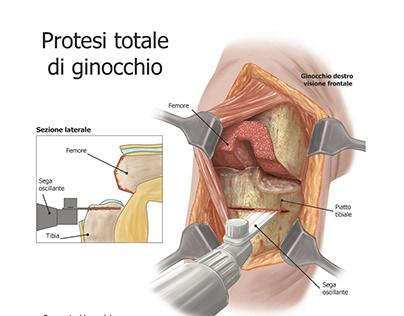 Illustrazioni mediche