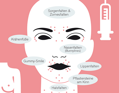 Infographics for a Beauty Surgery
