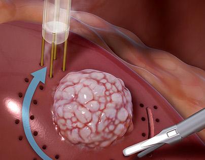 Partial Nephrectomy
