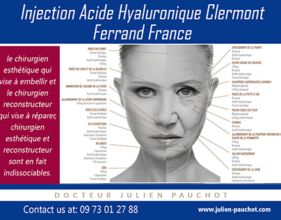 injection acide hyaluronique clermont ferrand|http://ww