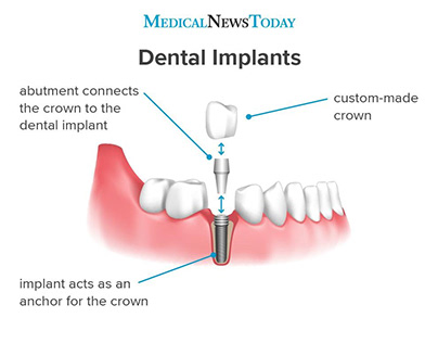 A dental implant is a structure that replaces a missing