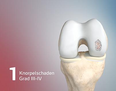 Medizinische 3D-Visualisierungen