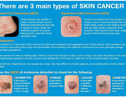 The Three Major Types of Skin Cancer
