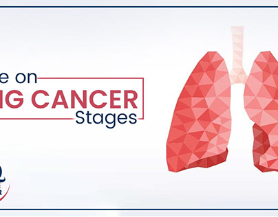 Stages of lung cancer for treatment