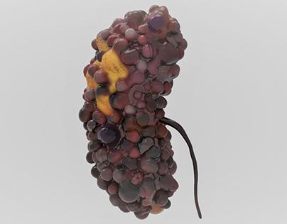 Polycystic Kidney| 3D model| Animation