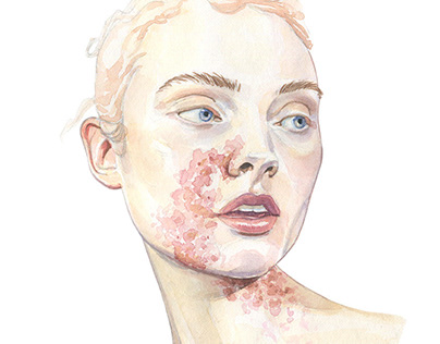 Atopic Dermatitis Project | COUCH agency
