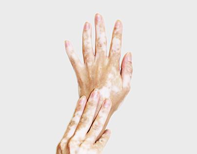 Vitiligo: Beauty in every shade
