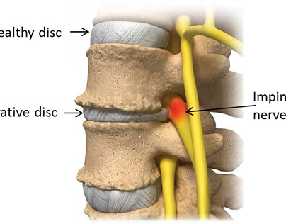 Smoking and the Degeneration of Spinal Discs