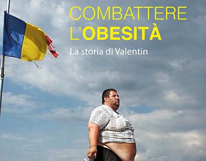 """""""Combattere l'Obesità"""" -Photo by Mugur Varzariu"""
