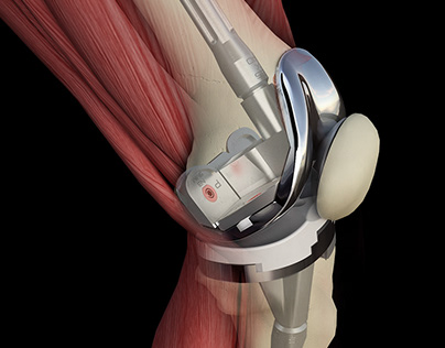 Orthopedic Renders - Knee