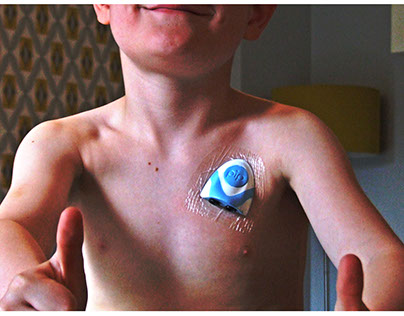 A concept medical device to replace a Hickman catheter.