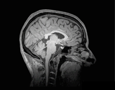 MRI animation