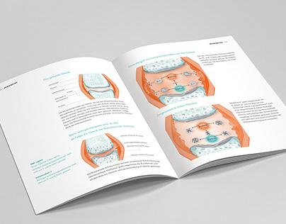 Rheumatism illustrations