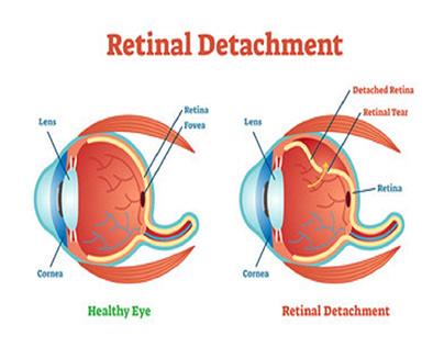 Potential Symptoms of Retinal Detachment