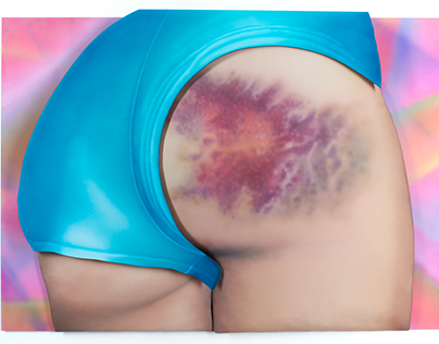 I Got a Really Beautiful Bruise on My Bum...