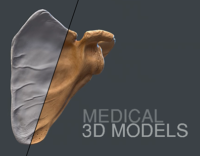 Medical 3D Models (VR/Games)