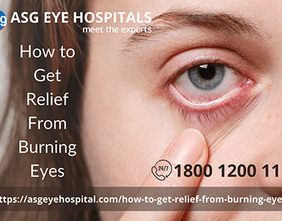 how to get relief from burning eyes
