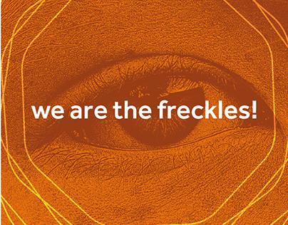 Ginger - we are the freckles! Apresentação do conceito.
