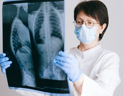 Doctor examining X-ray images