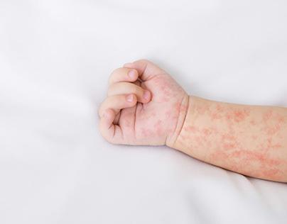 5 Makanan Penyebab Alergi Pada Bayi