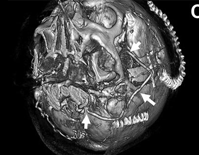 Cerebral Revascularization