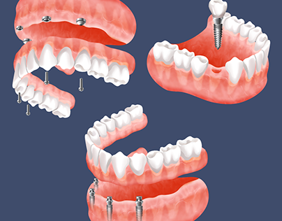 Dental and Implant Illustrations