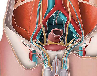 Ultrassonografia das Hérnias Abdominais | CETRUS