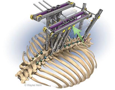 Medical Illustration of spine surgery