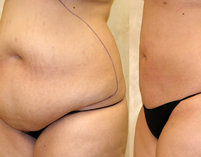 Liposuction Surgery : Things To Be Aware Of