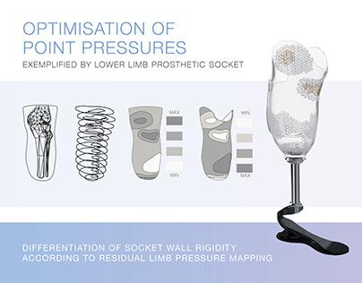 OPTIMISATION OF POINT PRESSURES// Leg prosthesis