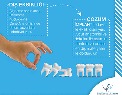 Implantologist Dr. Yusuf ATALAY Social Media Design