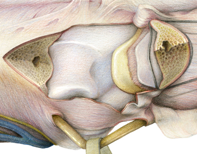 Olecranon Osteotomy