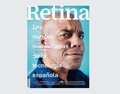 Retina 01