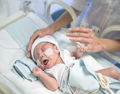 What Is Retinopathy of Prematurity?