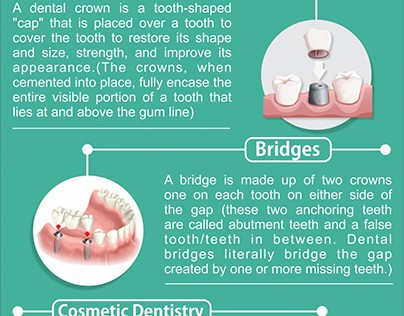 Some Common Terms in Dentistry