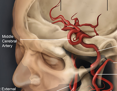 Osirix Project: Exposed skull and blood vessels