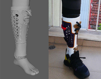 3D printed leg prosthetic cover (client work)
