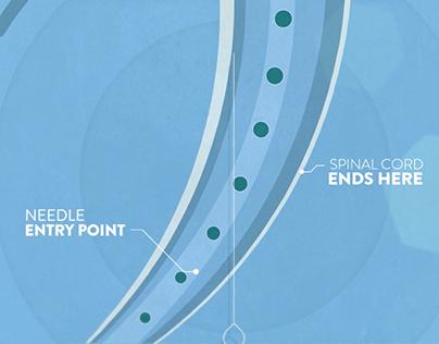 Explainer-Lumbar Puncture Procedure