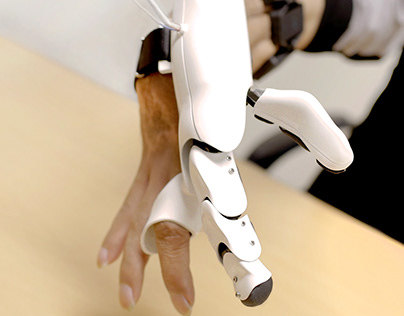 prosthetic robot finger for partial amputated patient