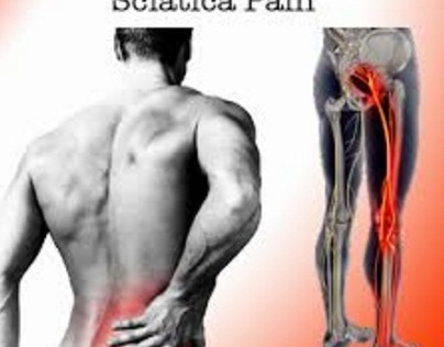 Why Sciatica Is More Common Than You Think