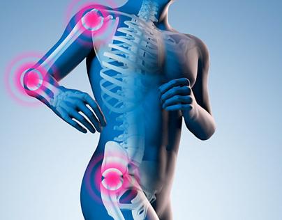 3D Illustration - Gelenkschmerzen Anatomie