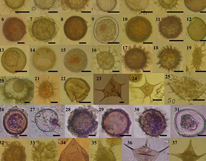 Microalgae Taxonomic Identification