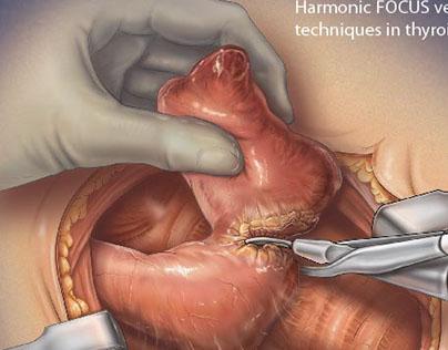 MEDICAL ILLUSTRATION: Thyroid Lobectomy